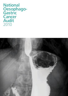 National Oesophago- Gastric Cancer Audit 2010