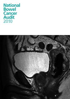 national bowel cancer audit 2010