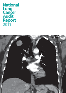 national lung cancer audit 2011