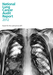 national lung cancer audit report 2012