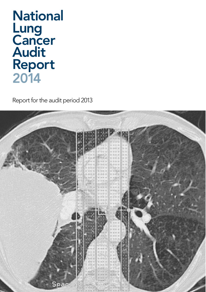 National lung cancer audit report 2014