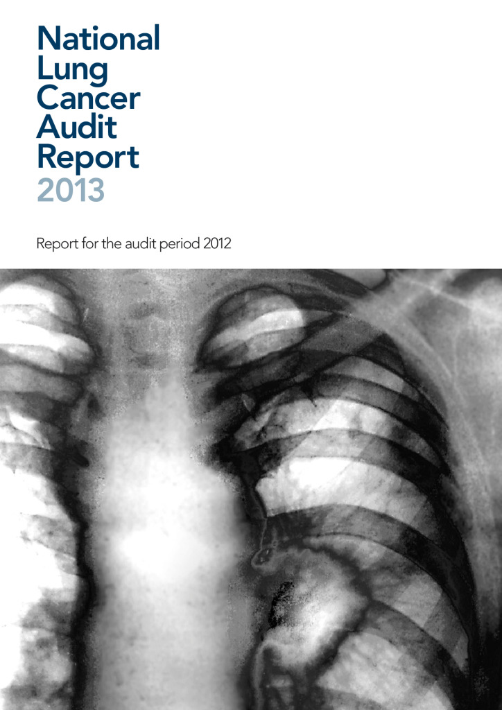 National Lung Cancer Audit Report 2013