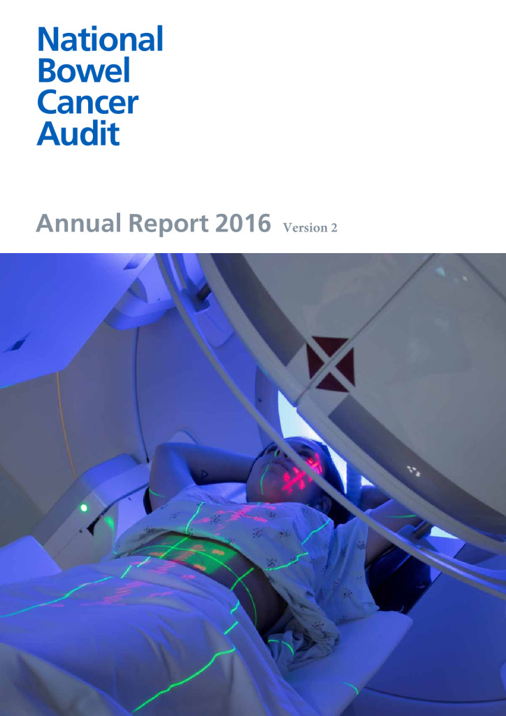 National Bowel Cancer Audit Annual Report 2016