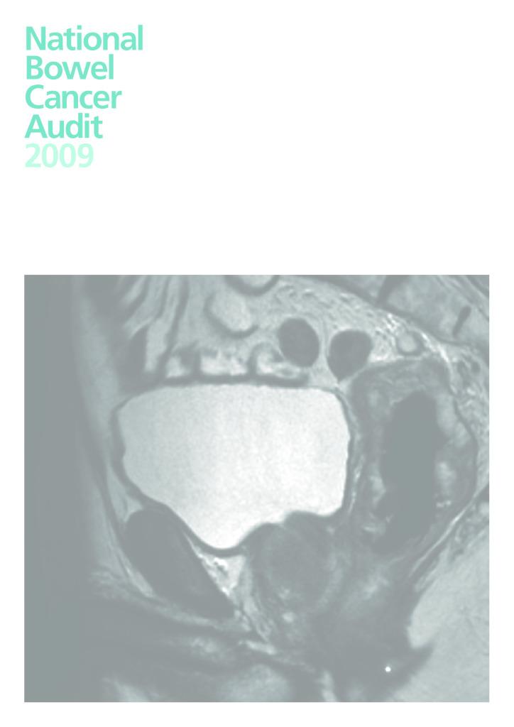National Bowel Cancer Audit 2009