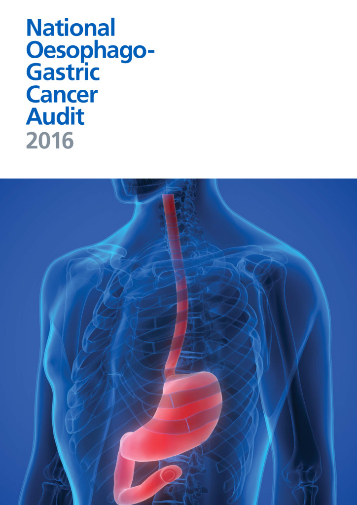 National Oesophago-Gastric Cancer Audit 2016