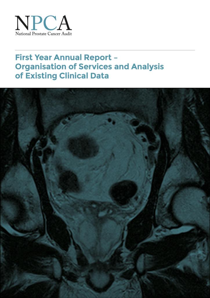 National prostate cancer audit report 2014