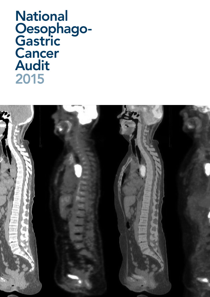 National Oesophago-Gastric Cancer Audit report 2015