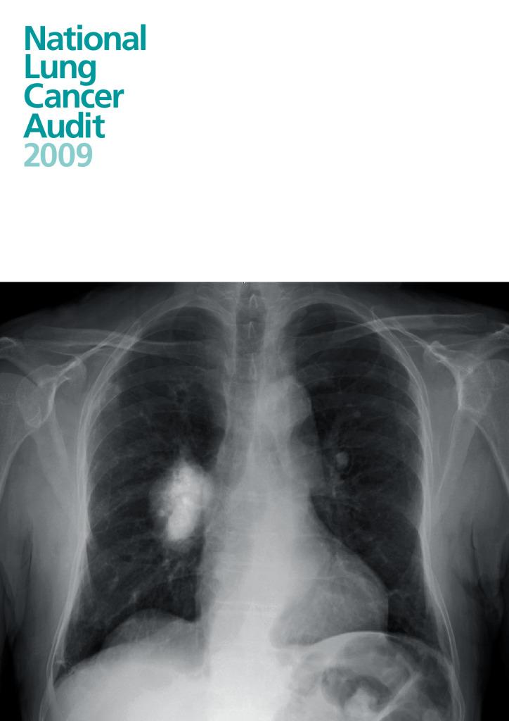 National Lung Cancer Audit 2009