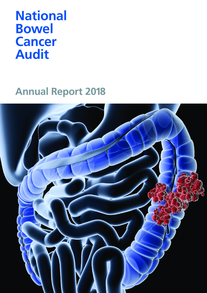 National Bowel Cancer Audit – Annual Report 2018