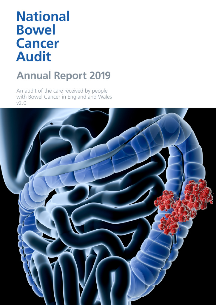 National Bowel Cancer Audit Annual Report 2019