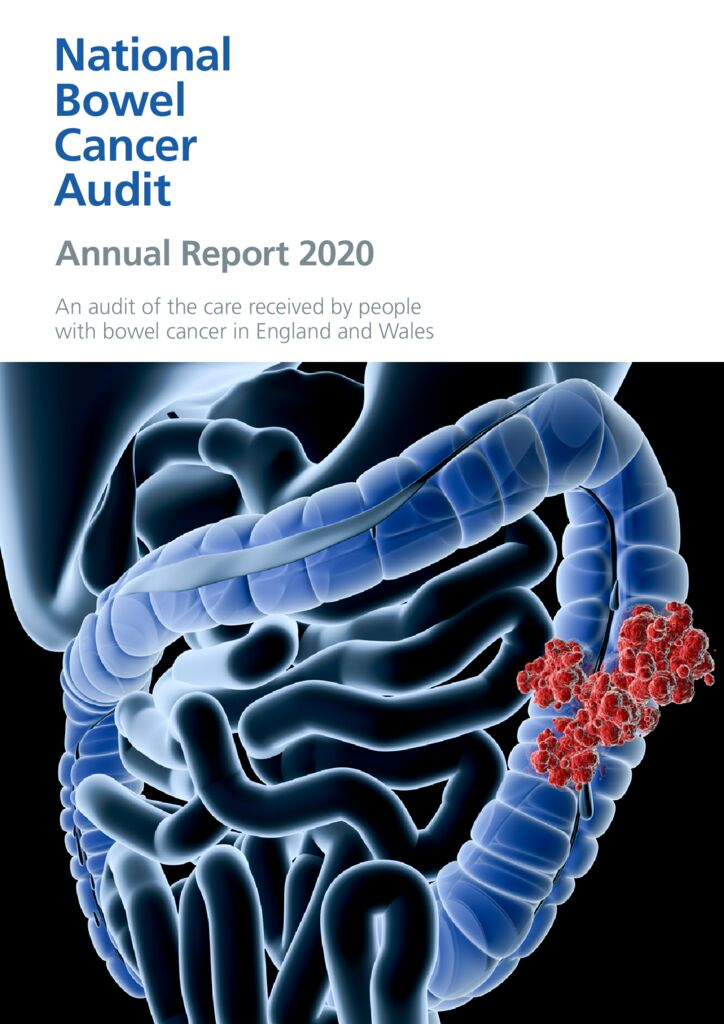 National Bowel Cancer Audit Annual Report 2020