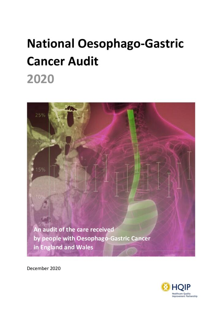 National Oesophago-Gastric Cancer Audit 2020