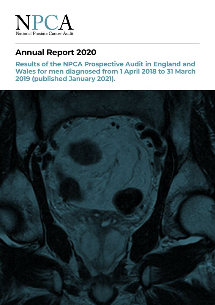 National Prostate Cancer Audit Annual Report 2020